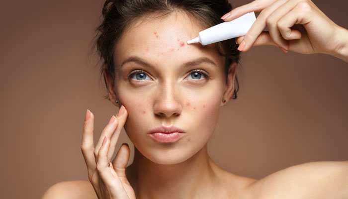 Find Out How Several Acne Treatment Skincare Methods Might Help Eliminate Acne Scarring
